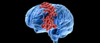 Radiation therapy for brain cancer found to cause significant damage to the brain